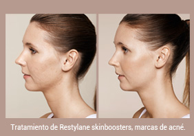Tratamiento con skinboosters
